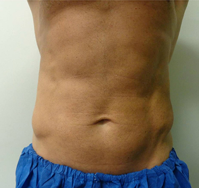 coolsculpting-before