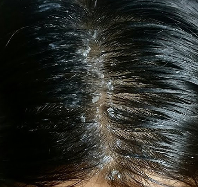 Dandruff treatment in Coimbatore