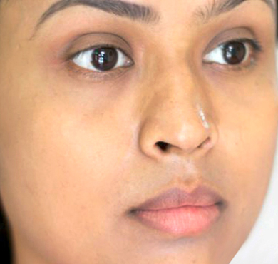 Skin-Lightening-Injections-after